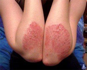 Эмульсия эмолиум при атопическом дерматите у детей