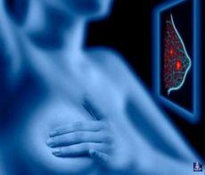 Рак молочной железы 1-3
