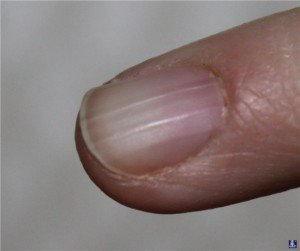 Ноготь отходит от ногтевого ложа на руке лечение народными средствами