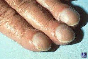 Цвет ногтей на руках о чем говорит