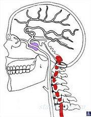 Остеохондроз шейного отдела позвоночника 2