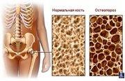 Остеопороз причины 5