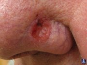 Опухоли кожи 2