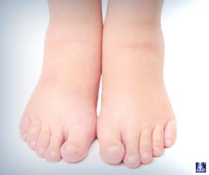 Как быстро снять отек ног в домашних условиях 41
