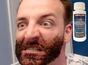 Как работает Миноксидил для роста бороды?