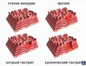 Гастрит желудка 1