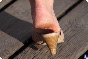 Натоптыши на ногах 2
