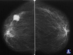 Рак молочной железы 4