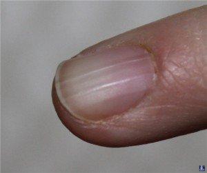 Ногти 4
