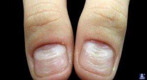 Ногти 7