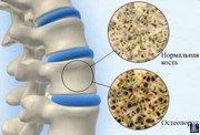 Остеопороз причины 4