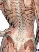 Пояснично-крестцовый остеохондроз 2