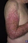 Предраковые опухоли кожи Пигментная ксеродерма