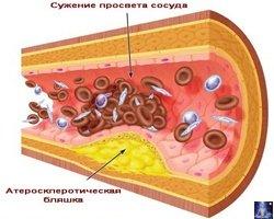 Как снизить уровеньхолестерина 1
