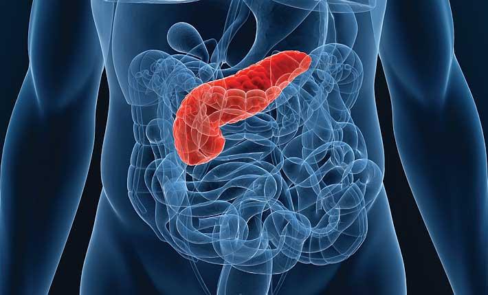 Разновидности рака поджелудочной железы