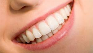 Как избавиться от зубного камня в домашних условиях: лучшие средства народной медицины