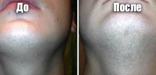 Миноксидил для бороды до и после